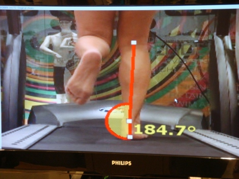 results of my video gait analysis revealed that i have a normal/neutral gait